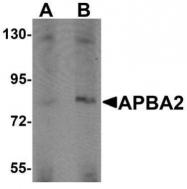 GTX85144 - APBA2