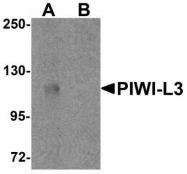 GTX85145 - PIWIL3