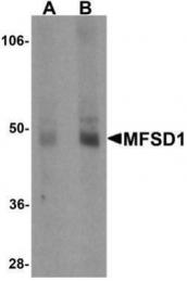 GTX85148 - MFSD1 / SMAP4