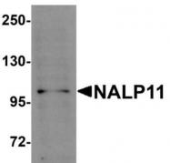 GTX85153 - NALP11