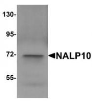 GTX85154 - NLRP10