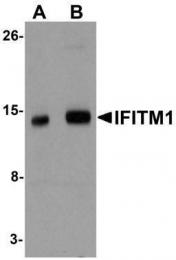 GTX85181 - CD225 / IFITM1