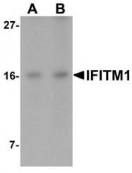GTX85182 - CD225 / IFITM1