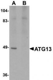 GTX85183 - ATG13