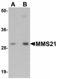 GTX85185 - NSMCE2