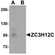 GTX85195 - ZC3H12C