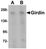 GTX85215 - Girdin