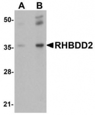 GTX85219 - RHBDD2