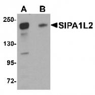 GTX85227 - SIPA1L2