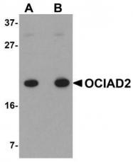 GTX85233 - OCIAD2
