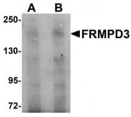GTX85235 - FRMPD3