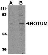 GTX85260 - Notum