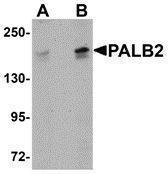 GTX85263 - PALB2