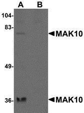 GTX85265 - NAA35 / MAK10