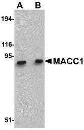 GTX85281 - MACC1