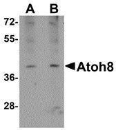 GTX85296 - ATOH8
