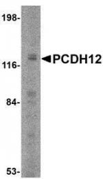 GTX85342 - Protocadherin-12 / PCDH12