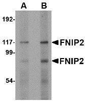 GTX85348 - FNIP2