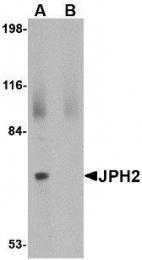GTX85367 - Junctophilin-2 / JPH2