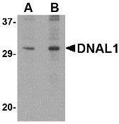GTX85387 - DNAL1