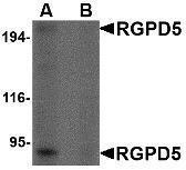 GTX85401 - RGPD5 / RGPD6