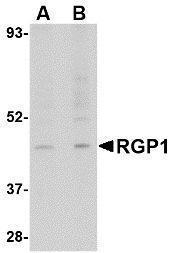 GTX85404 - RGP1