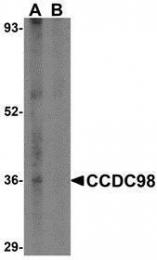 GTX85433 - CCDC98