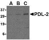 GTX85449 - CD273 / PDL2