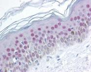 GTX85599 - Nucleophosmin