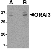 GTX85677 - ORAI3