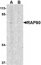 GTX85734 - UIMC1 / RAP80