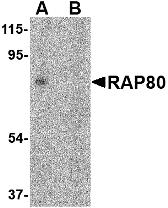 GTX85735 - UIMC1 / RAP80