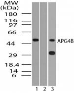 GTX85759 - APG4B / ATG4B