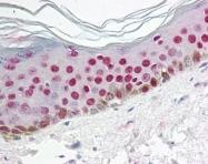 GTX85782 - Uracil-DNA glycosylase 2 / Cyclin-O