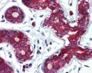 GTX85818 - Tumor protein D53 (TPD52L1)