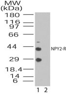GTX85842 - NPY receptor 2 / NPY2R