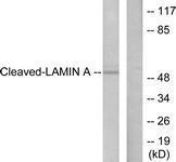 GTX86913 - Lamin-A/C (LMNA)
