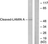GTX86918 - Lamin-A/C (LMNA)