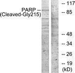 GTX86935 - PARP1