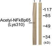 GTX86963 - RELA / NF-kB p65