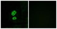 GTX86967 - Olfactory receptor 2T10