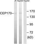 GTX87061 - CEP170
