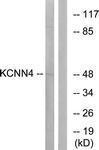 GTX87069 - KCNN4