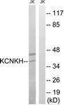 GTX87141 - KCNK17