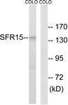 GTX87159 - SCAF4 / SFRS15