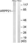 GTX87161 - ARPP21 / TARPP