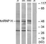 GTX87182 - HNRNPH2