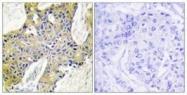 GTX87187 - Isoleucyl-tRNA synthetase / IARS2