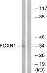 GTX87249 - FOXR1 / FOXN5