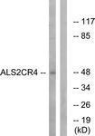 GTX87300 - ALS2CR4 / TMEM237